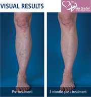 Vein Disease Treatments at Maryland,  USA