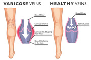 Varicose Veins Disease Doctors at Maryland USA